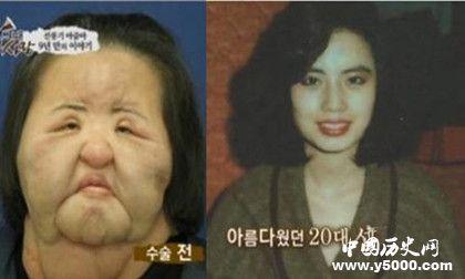 韩国风扇女去世韩国风扇女简历风扇女为什么会痴迷整容